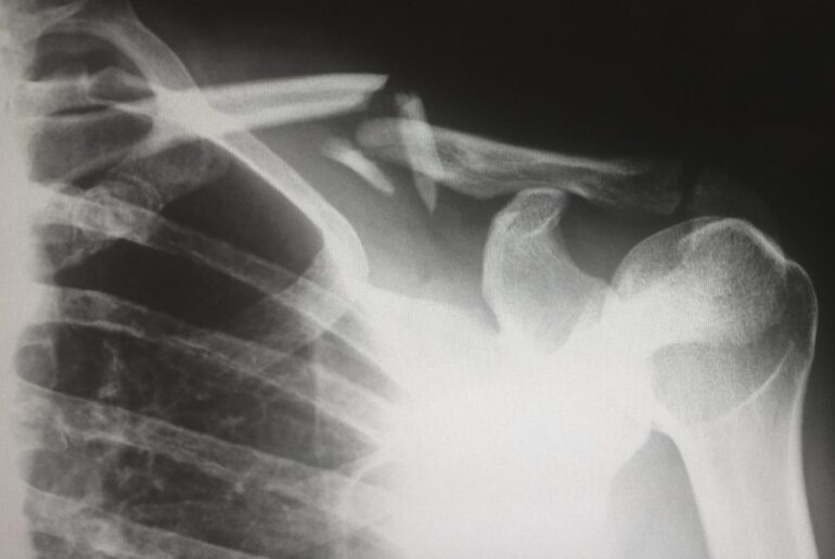 Educational Outlook for Becoming a Radiologist - Peterson's